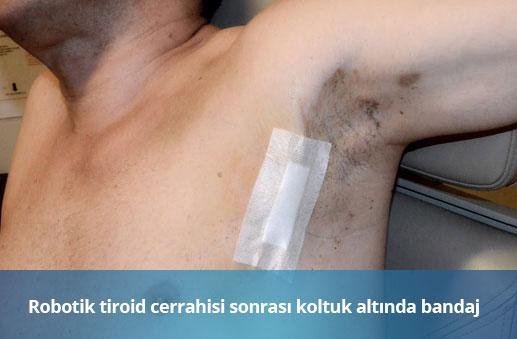 Robotik Tiroid Cerrahisi Sonrası Bandaj - Op. Dr. Erkan Aktan