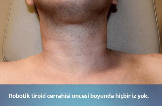 Robotik Tiroid Cerrahisi Öncesi - Op. Dr. Erkan Aktan